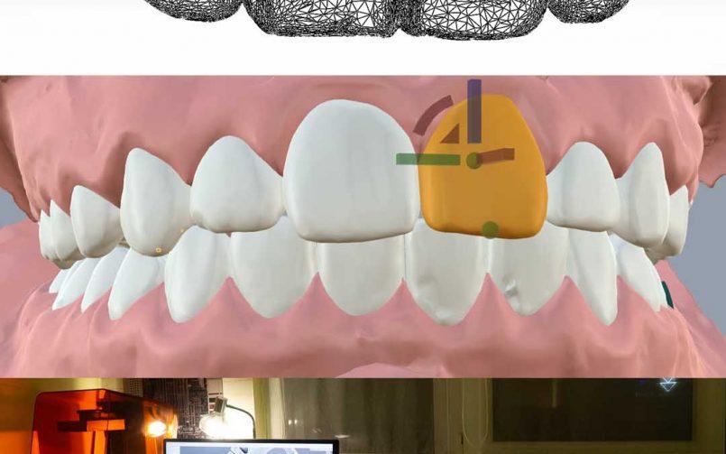 Създаваме иновации в ортодонтията!